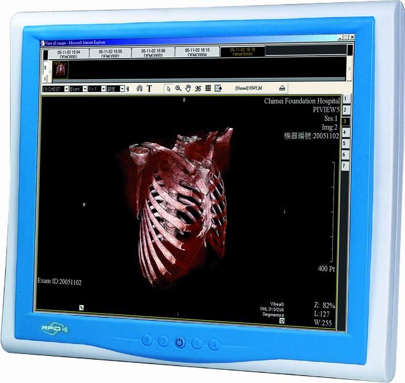 """Profesjonalna stacja medyczna z ekranem LCD 17"""" oraz wysoko wydajnym procesorem Intel Core 2 Duo"""